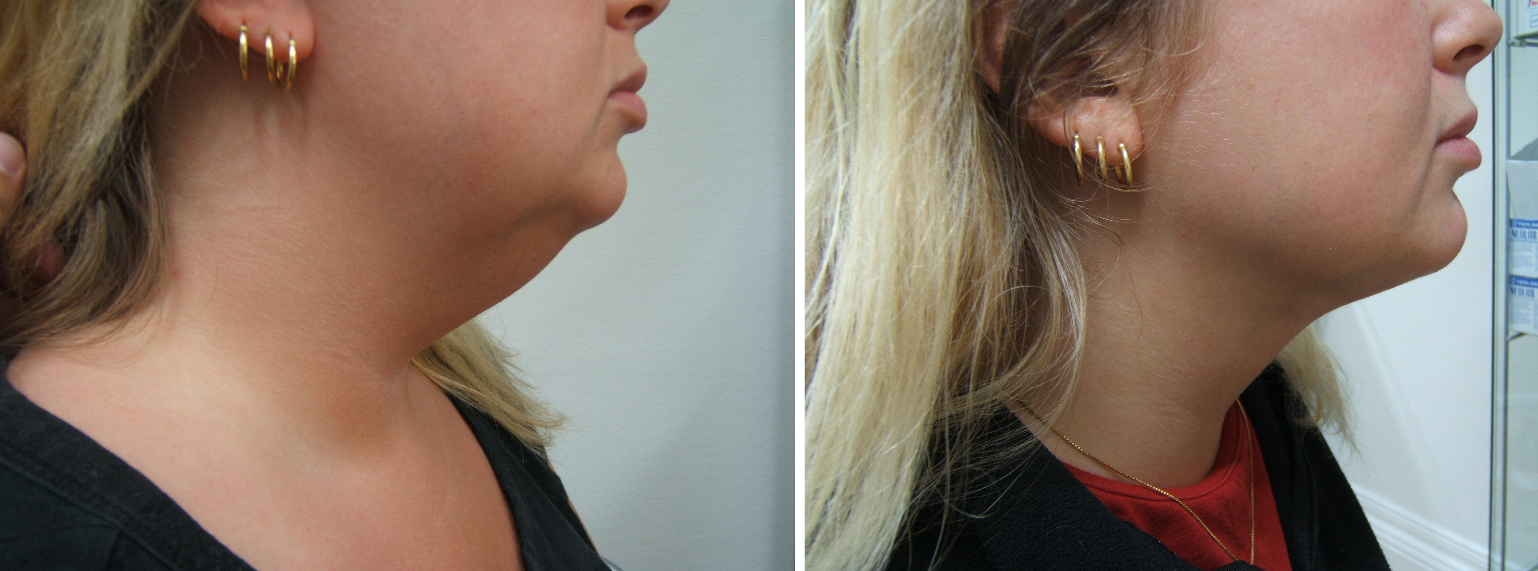 Före & Efter fettsugning utav haka