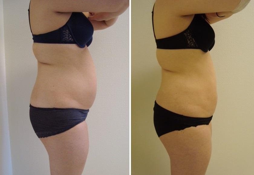 Fettsugning, framsida mage