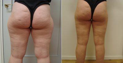 fettsugning lår & ben 2