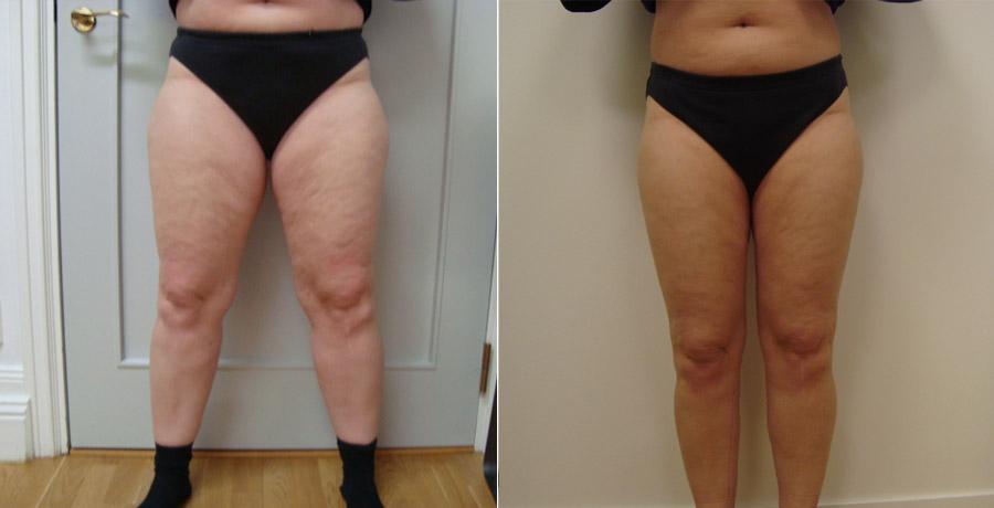 Fettsugning av lår, ben & bakdel mha smartlipo