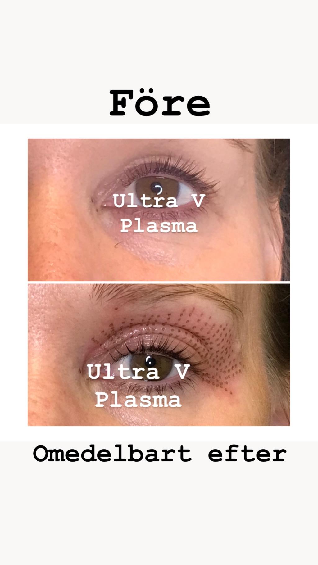 Ultra V Plasma för ögonlock